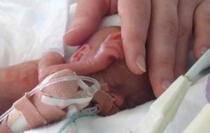 cuidados com prematuros